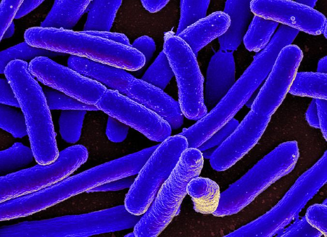 e-_coli_bacteria_16578744517